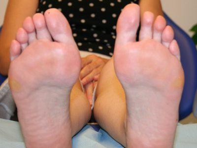Hallux Valgus o Juanete Cirugía y lesiones tobillo y pie, síntomas, tratamiento, causas,. Reconstrucción del antepie
