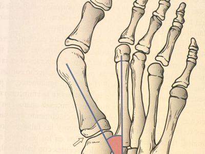 Hallux Valgus o Juanete Cirugía y lesiones tobillo y pie