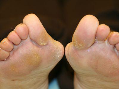 Hallux Valgus o Juanete Cirugía y lesiones tobillo y pie. Deformidad severa del antepia