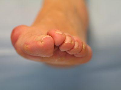 Hallux Valgus o Juanete Cirugía y lesiones tobillo y pie, síntomas, tratamiento, causas,