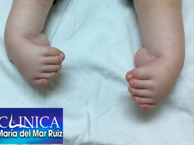 Bebé con deformidad severa de tobillo y pie Cirugía-Reconstructiva-de-Tobillo-y-Pie