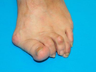 Paciente con deformidad severa de hallux valgus y dedos en martillo Cirugía-Reconstructiva-de-Tobillo-y-Pie
