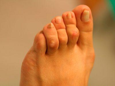 El roce de los dedos en martillo con el calzado produce dolor y callosidades