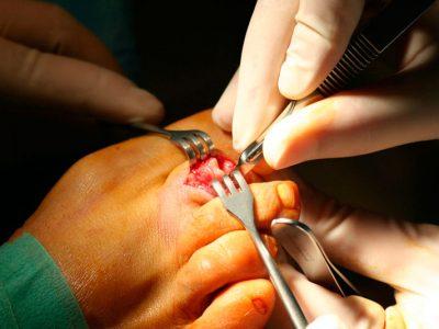 Dedos-en-martillo-y-dedos-en-garra Cirugía de dedo en martillo realizada con anestesia local, tras la cual el paciente se va caminando