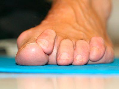 Antes de la Cirugía Dedos-en-martillo-y-dedos-en-garra-