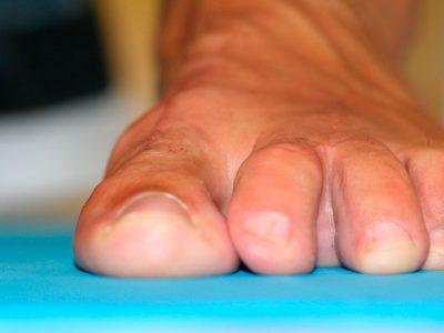 Después de la Cirugía Dedos-en-martillo-y-dedos-en-garra-