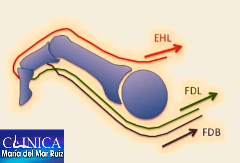 Efecto deformante de la musculatura en el dedo en martillo