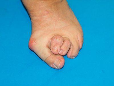 Dedos en martillo asociados a hallux valgus o juanete