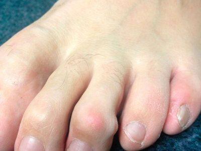 Dedos en maza del 2º y 3º dedos: la deformidad está en la articulación interfalángica distal