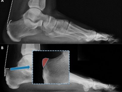 Síndrome de Haglund diagnóstico por radiografia
