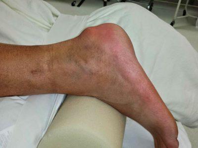Enfermedad de Haglund, imágen diagnóstico