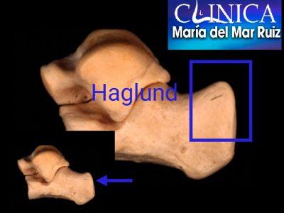 Imagen radiográfica en la que vemos una gran calcificación en la inserción del tendón de aquiles y deformidad de haglund