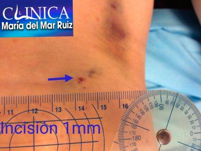 Alargamiento gemelar con cirugía ecoguiada, realizada con anestesia local. Imagen de 1 día después de la cirugía, con incisión de 1 mm Tendinopatía-Tendón-de-Aquiles