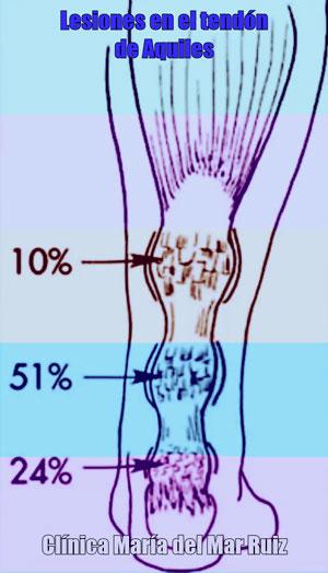 Porcentajes en la localización de las lesiones del tendón de aquiles Tendinopatía-Tendón-de-Aquiles