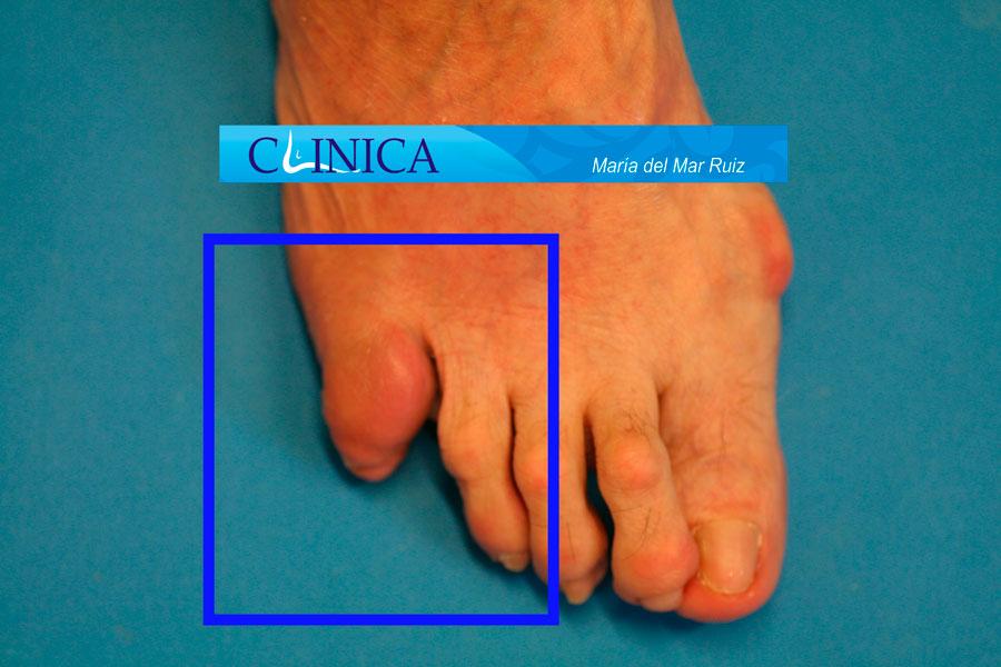Inflamación y bursitis del 5º dedo