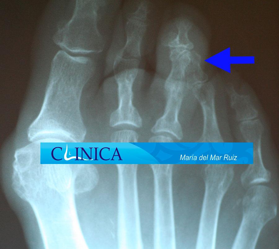 Radiografías mostrando las desviaciones de los dedos supraducto, infraducto y clinodactilia