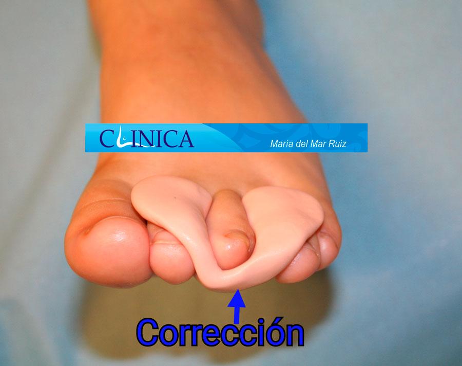 Dedo infraducto, deformidad congénita corrección con ortesis realizada a medida
