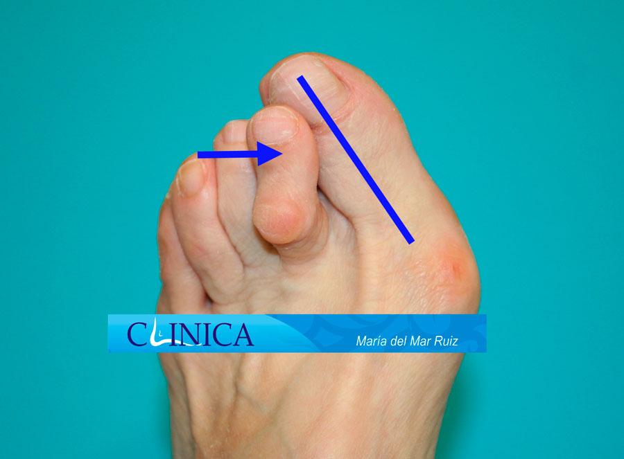 2º dedo montado (supraducto) asociado a un juanete o hallux valgus