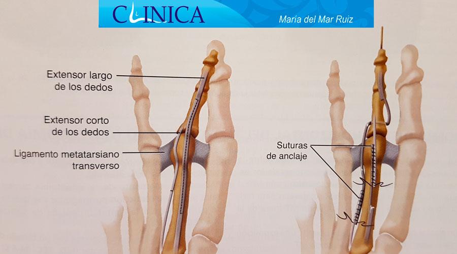 Cirugías correctivas para el dedo infra y supraducto bajo anestesia local