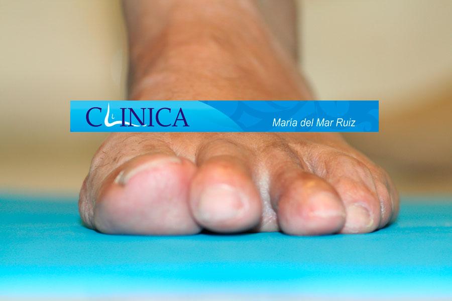 antes y después de la cirugía Dedo-Supraducto-infraducto-y-clinodactilia