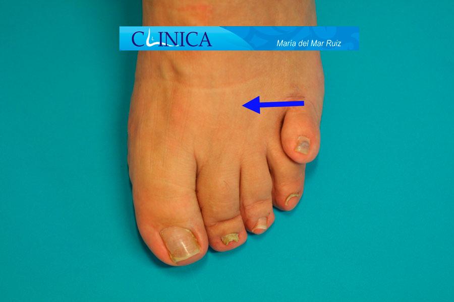 5º dedo montado congénito (supraducto)