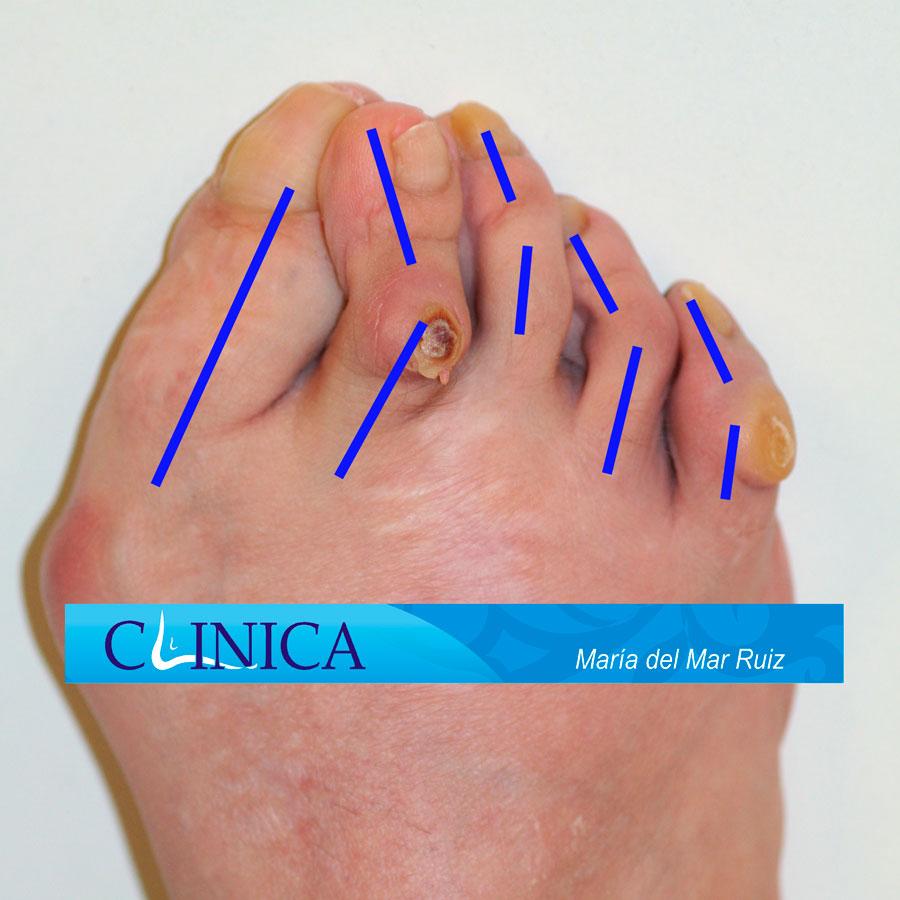 Deformidad de dedo enroscado en paciente con poliomielitis. Helomas en las zonas de roce.