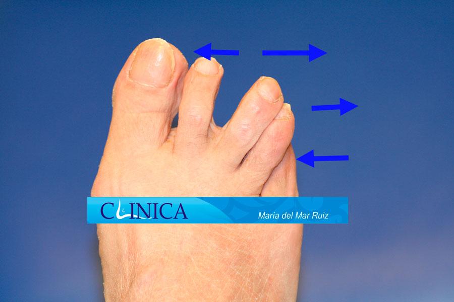 Deformidad angular en la articulación metatarsofalángica de los dedos