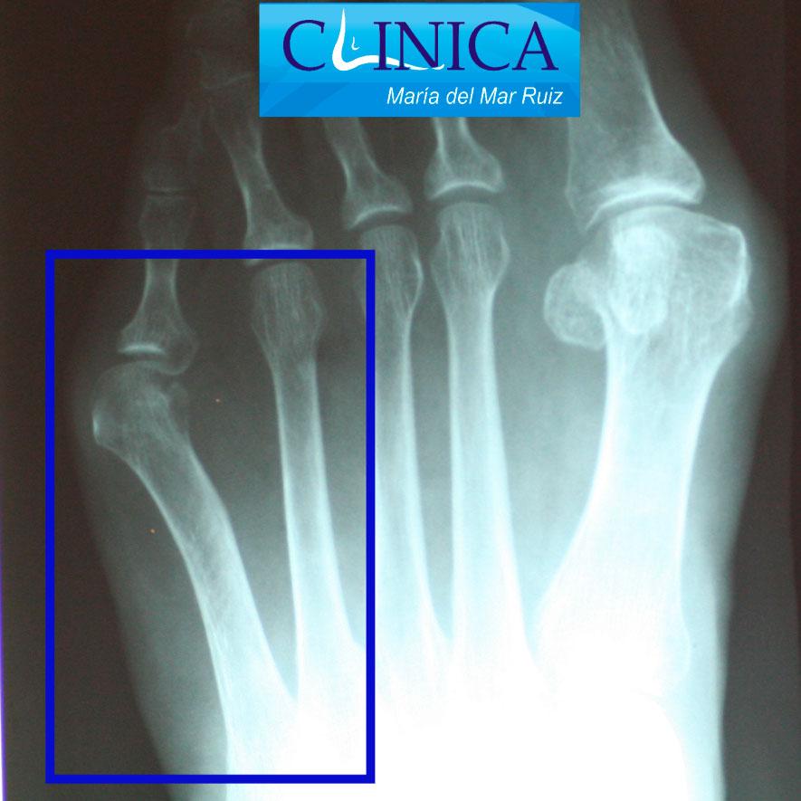 Radiografía ap donde vemos el arqueamiento lateral del 5º metatarsiano: juanete de sastre tipo 2