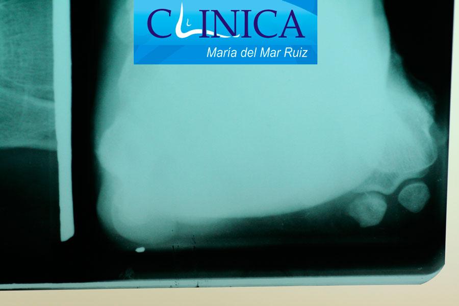 Radiografías con un testigo para comprobar la coincidencia de una lesión en la piel de la planta del pie, con la cabeza del quinto metatarsiano