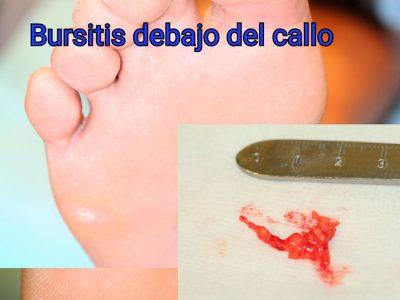 A veces encontramos bursitis dolorosas que hay que extraer Juanete-de-sastre