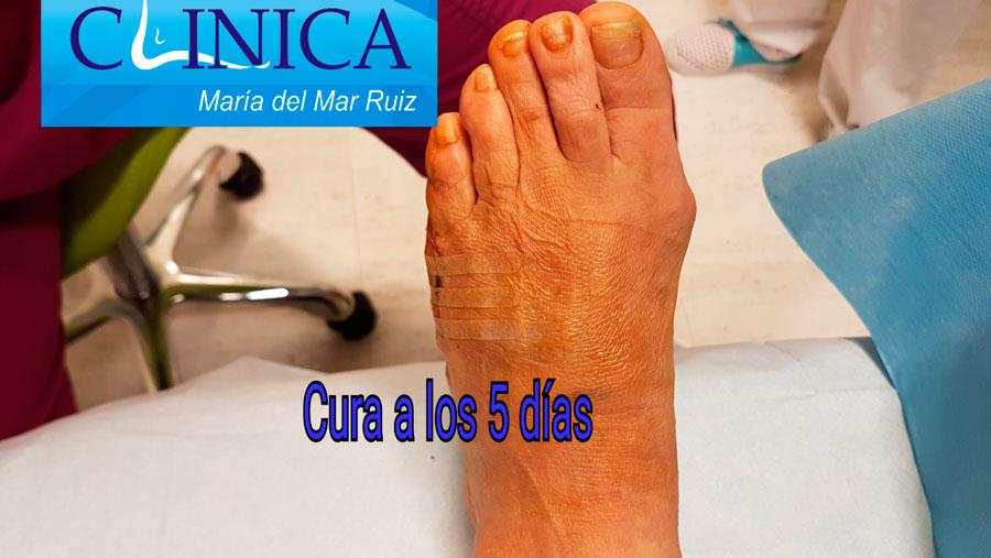 Imagen a los 5 días de la cirugía del juanete de sastre: no hay inflamación ni hematoma no dolor