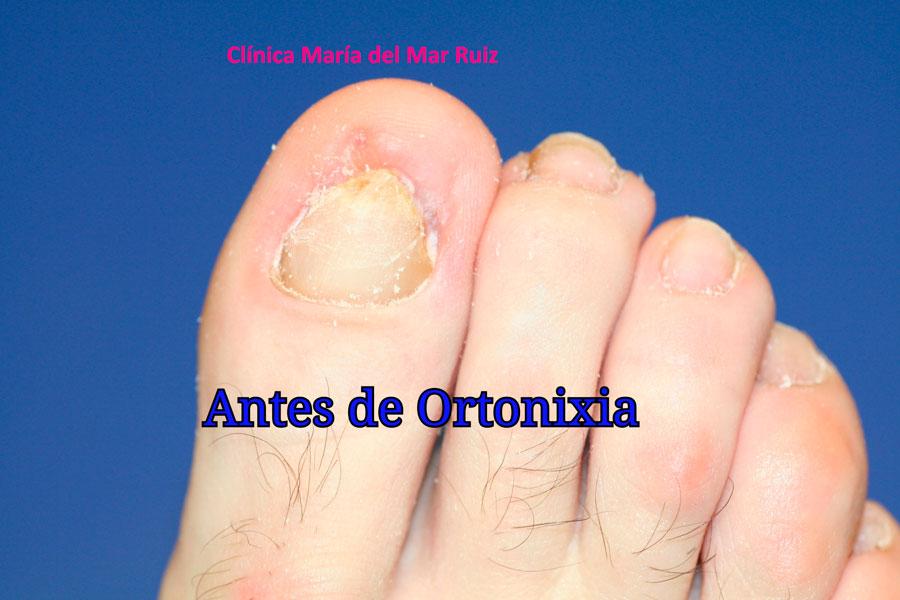 Uña-encarnada. Hematoma subungueal tratado con ortonixia estética