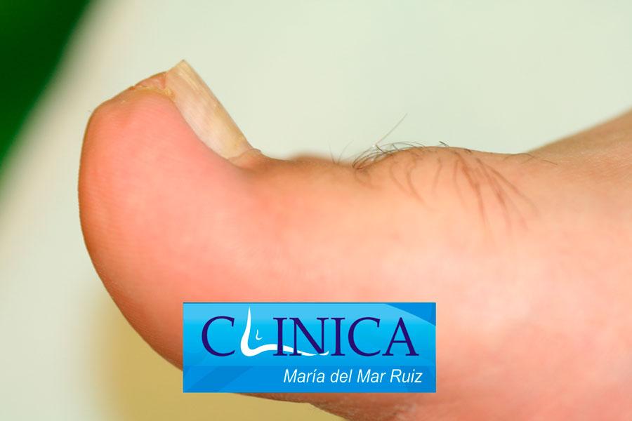 Uña Incarnada | Clínica María del Mar Ruiz