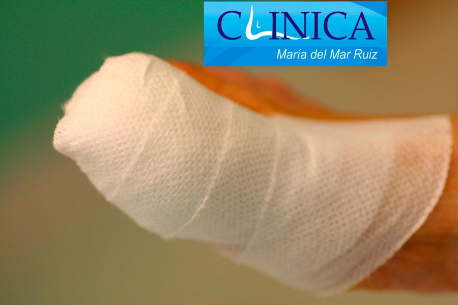 Uña-encarnada. Imágenes intraoperatorias y vendaje posterior en la cirugía de la uña: el paciente se va caminando.