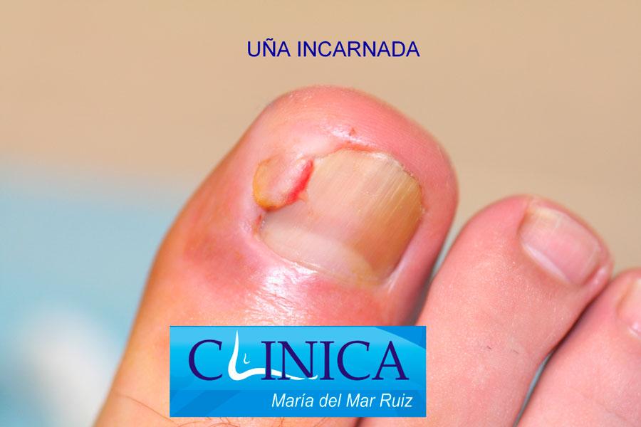 Uña-encarnada u-Onicocriptosis