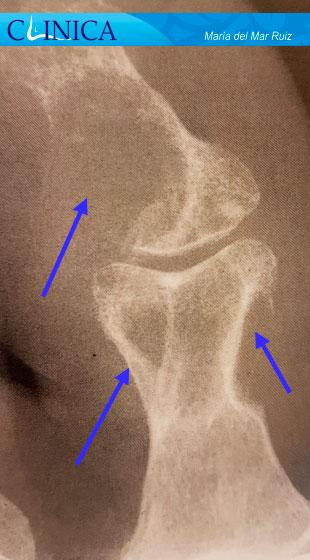 estudio radiográfico de la artropatía gotosa y pseudogota