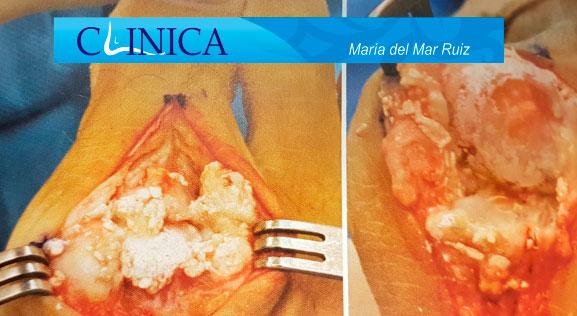 sintomas de la artropatia-gotosa-y-pseudogota