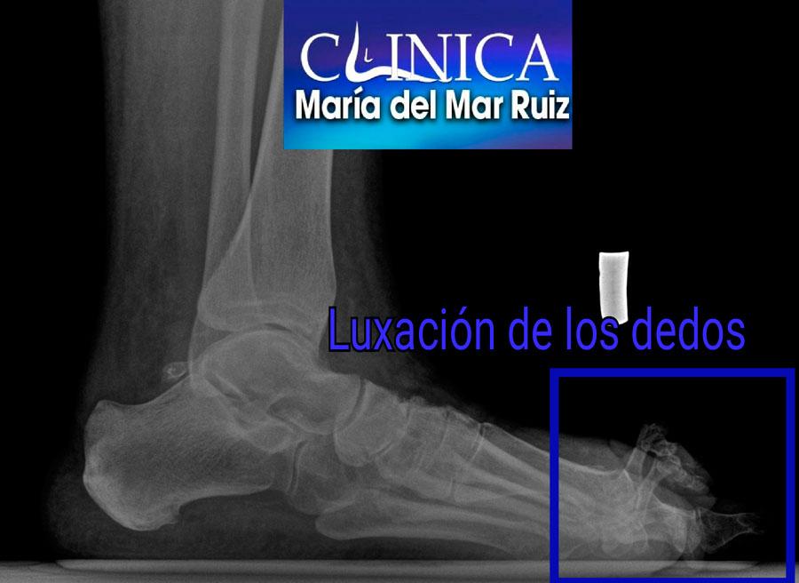 Radiografía de una luxación de los dedos del pie por artritis reumatoide.