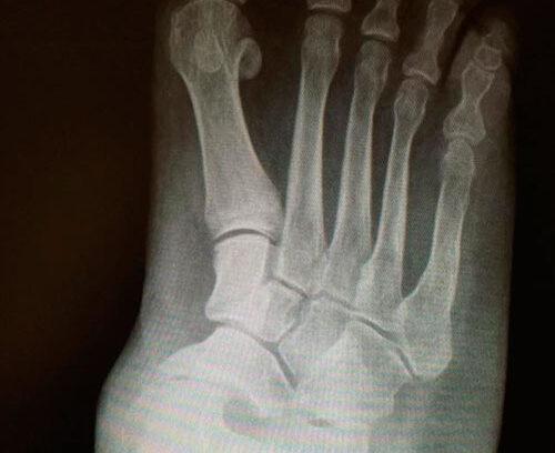 Pie plano por deformidad en retropié en un paciente con artritis reumatoide.