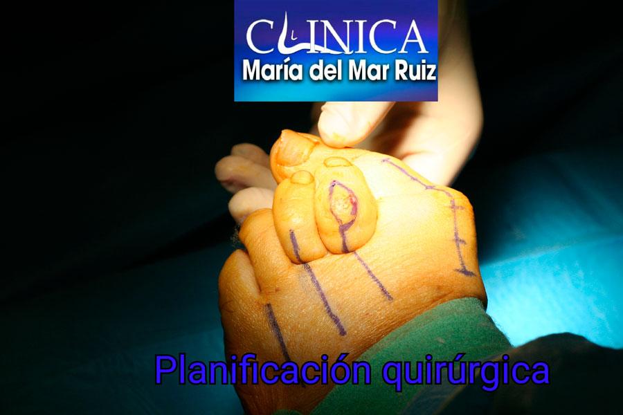 La planificación quirúrgica es primordial para obtener una excelente corrección