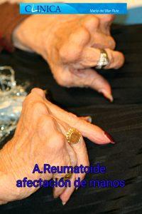 Pie Reumático Artritis Reumatoide Clínica María Del Mar Ruiz