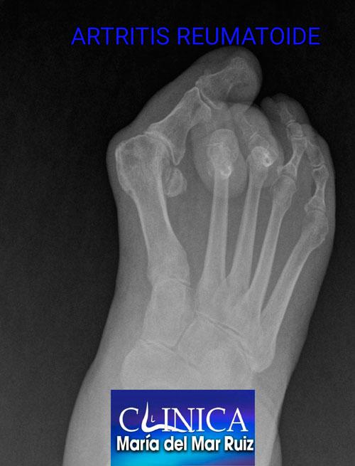 Radiografía de un paciente con artritis reumatoide, que ha producido una gran deformidad con Hallux valgus y dedos en martillo con luxación de las articulaciones metatarsofalángicas.