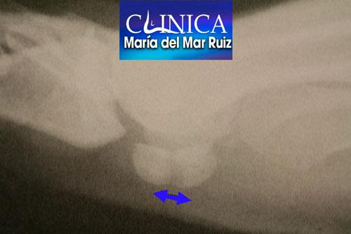 Radiografía lateral (sincondrosis)