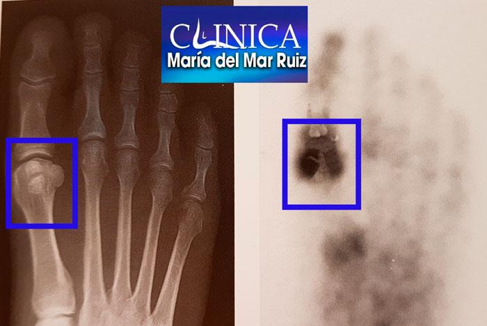 Sesamoiditis Radiografía y gammagrafía con tecnecio 99