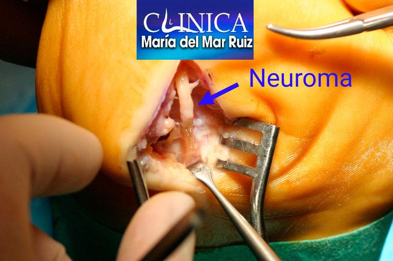 El mismo neuroma intraoperatorio