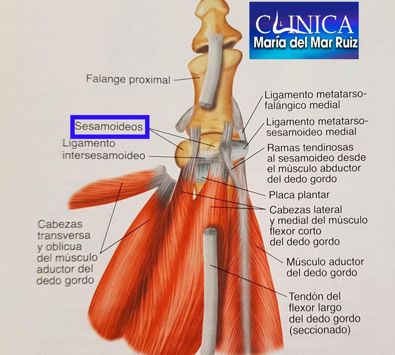 Sesamoiditis, Fractura de los sesamoideos | Clínica María del Mar Ruiz