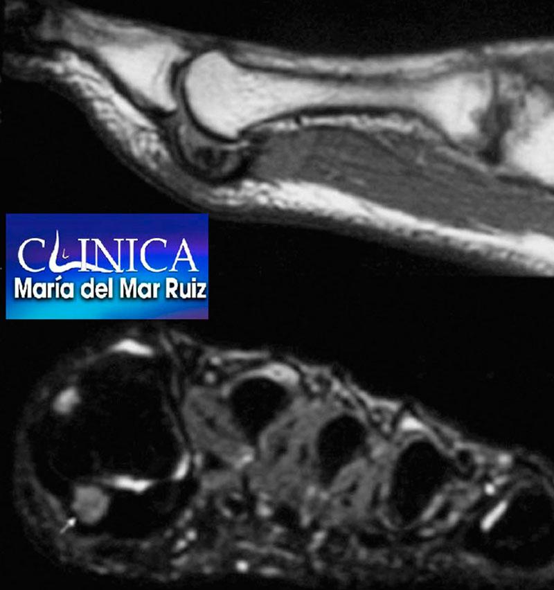 La resonancia magnética nos permite realizar el diagnóstico