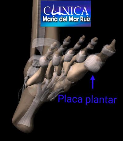 Placa plantar y nervios plantares adyacentes a los sesamoideos
