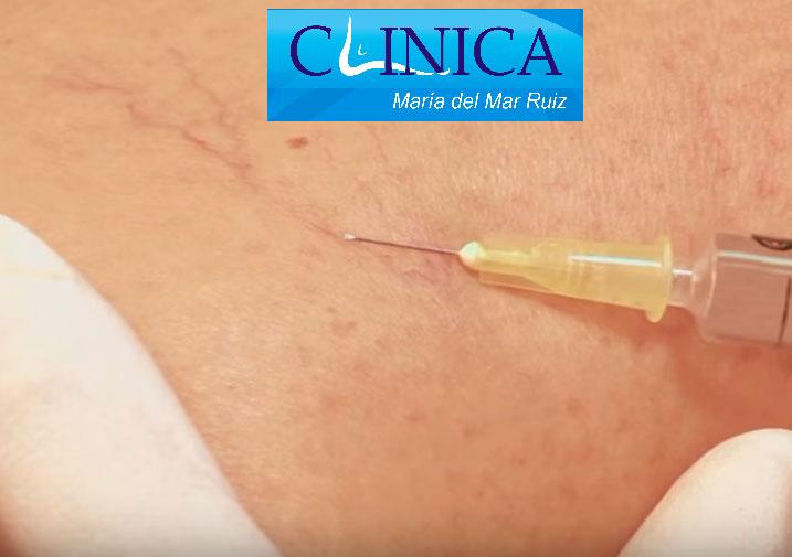 Las inyecciones para tratar las varices se realizan con agujas ultrafinas que apenas causan molestia