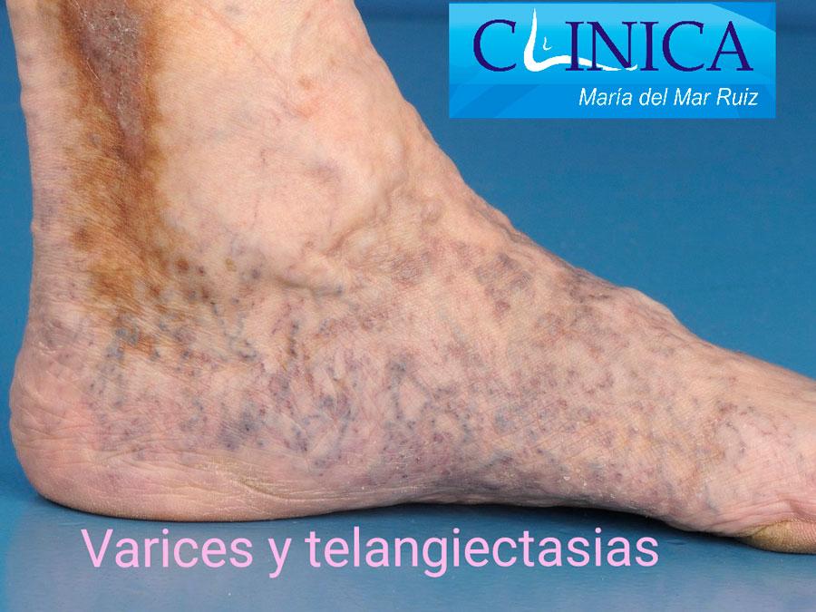 Imagen con varices y telangiectasias en pie y tobillo